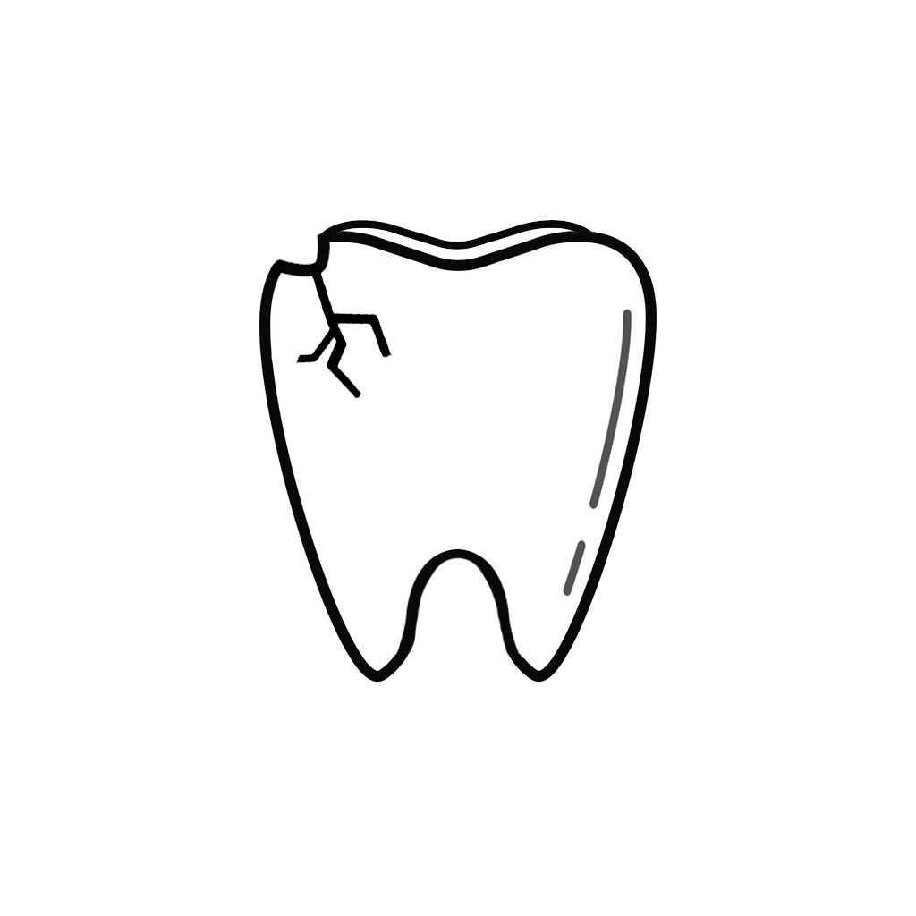 Laurel Dentist | I Chipped a Tooth! What Can I Do?